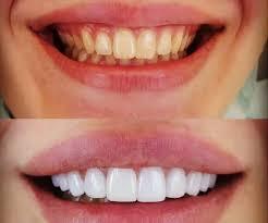 تبيض الاسنان في تركيا 2020 9